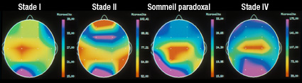 phases-sommeil